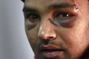 25-letni Pakistańczyk pobity przez neonazistów z greckiego Złotego Świtu /icantrelaxingreece.files.wordpress.com