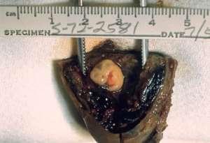 """Ciąża jajowodowa, która - w przeciwieństwie do kobiet w ciąży, będzie objęta """"ochroną życia""""/wikimedia commons"""
